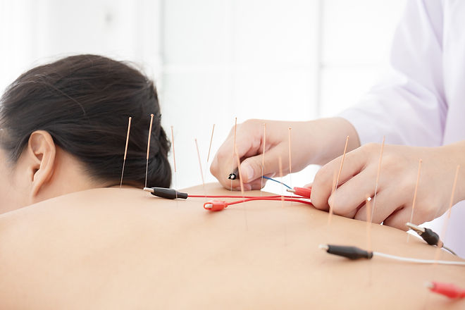 close up woman undergoing acupuncture tr