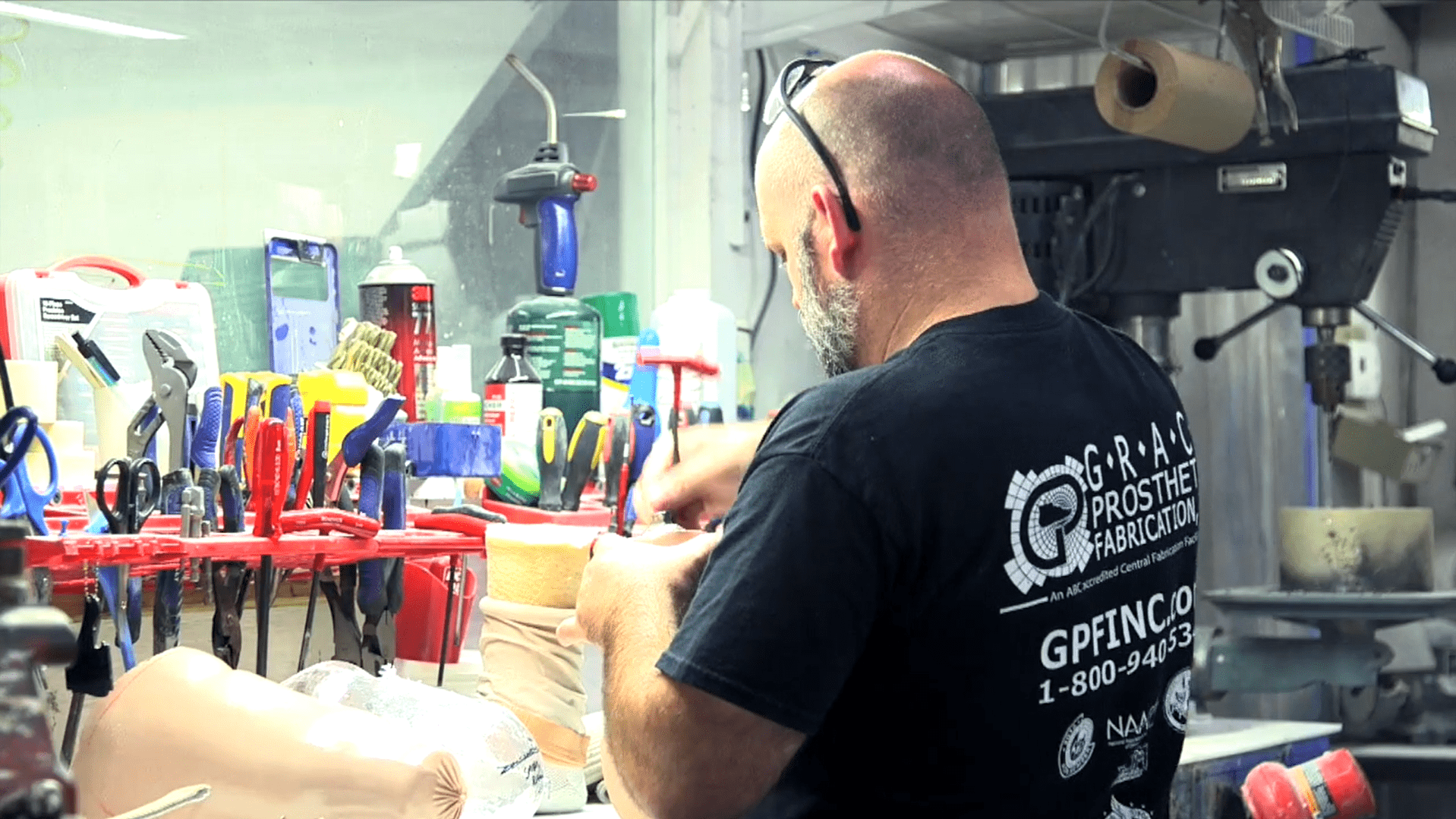 Grace Prosthetics Fabrication