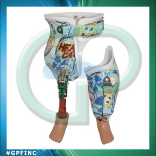 Bilateral Pediatric Laminated Hip