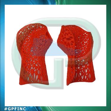 3D Printed Wrist Orthosis