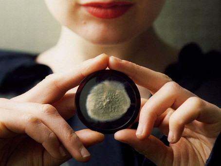 The famous fungus that led to the discovery of penicillin is going up for auction