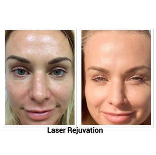 Rejuvenation Laser Treatment $215