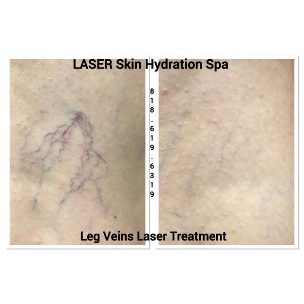 Spider Vein Laser Removal  1 Full Leg $215