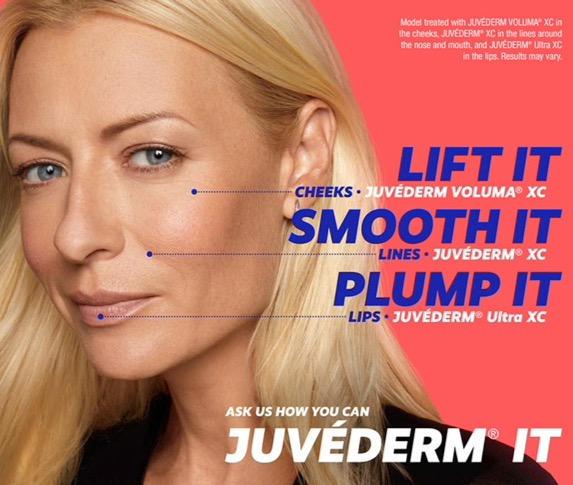 Juvederm Ultra Plus XC $600