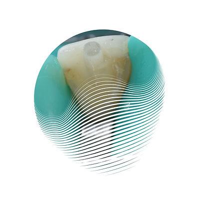 pino de fibra de vidro