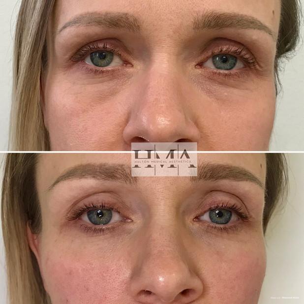 cheek + tear trough filler (under eyes)