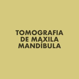 Tomografia de Maxila Mandíbula