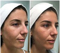Skin Treatments - The Perfect Peel - Medical grade chemical peel