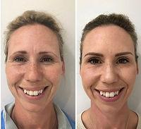 Anti-wrinkle Injections (botox)