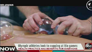 Cupping Olympians.jpg