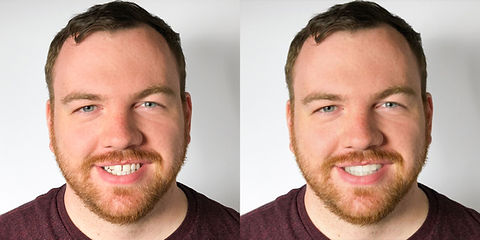 SmileView-BeforeAfter10Brian.jpg
