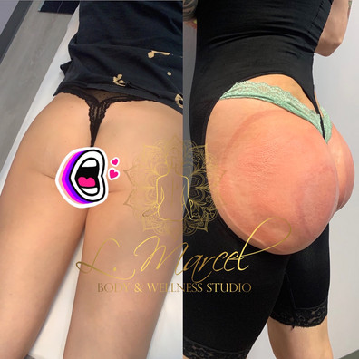 BEFORE/AFTER WITH OUR BODYSHAPER.JPG