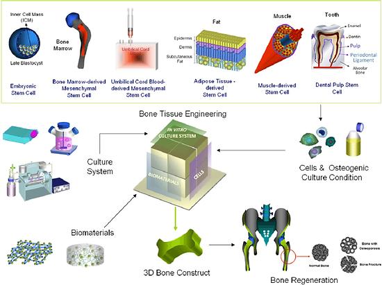 Stem-cells-based-bone-tissue-engineering