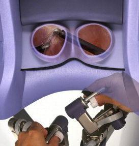 Chirurien à la console du robot Da Vinci