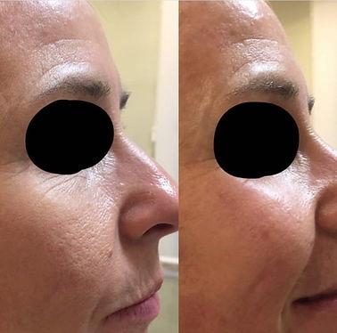 IPL richmond nelson nz, skin tightening richmond nelson nz, www.richmondlaserclinic.co.nz