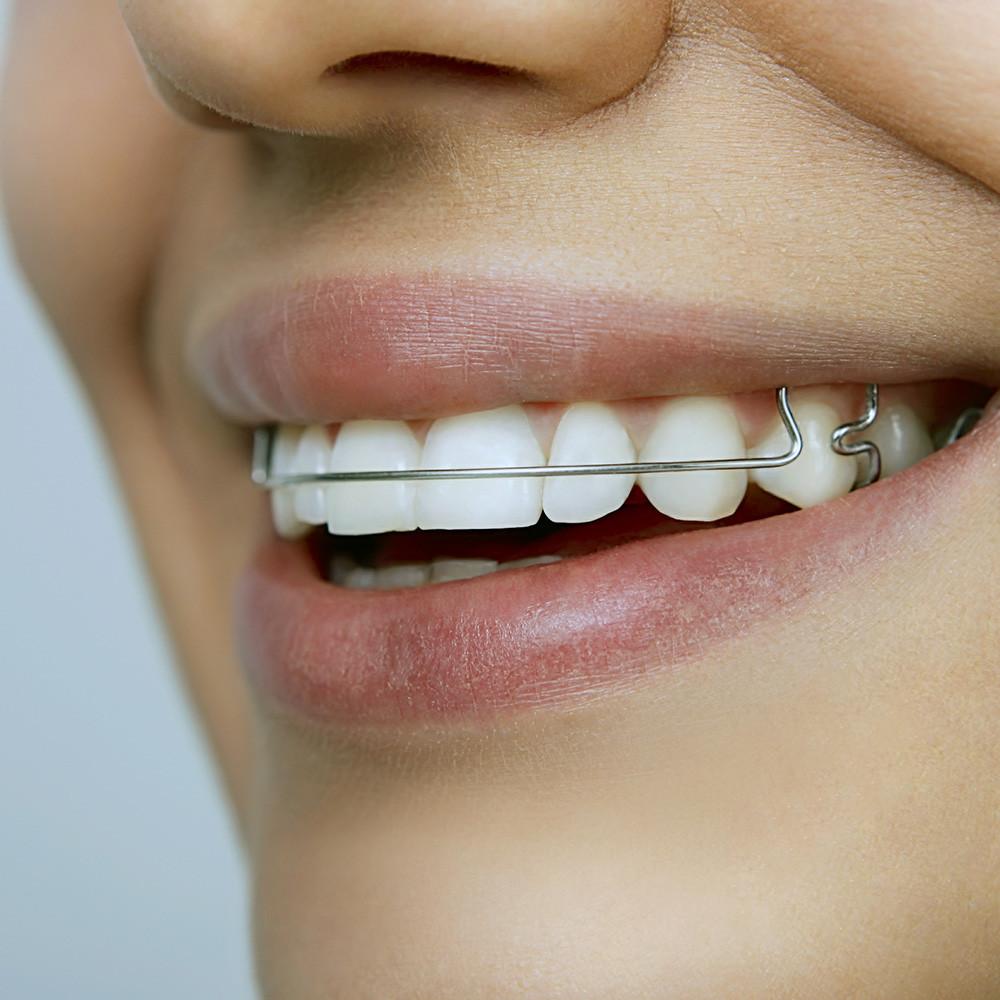 Contenção ortodontica