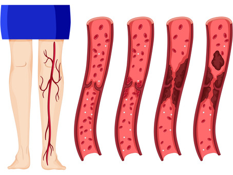 VITAL THINGS ONE SHOULD KNOW ABOUT DEEP VEIN THROMBOSIS?