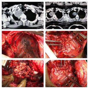 Excision of Pancoast Tumor - Right sided Thoractomy done - Metastatic Adenocarcinoma