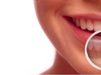 IMPLANTE DENTÁRIO: Recupera seu sorriso e autoestima