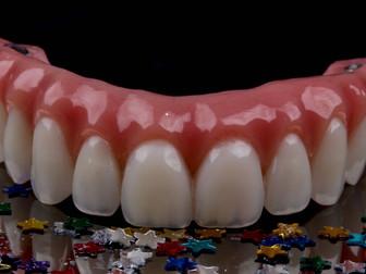 Prótese protocolo devolve a função oral