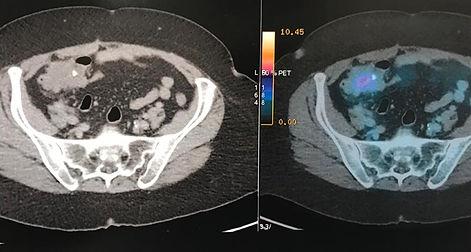 pseudomixona peritonal.jpg