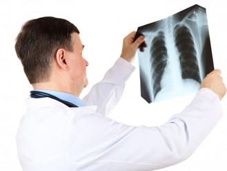 Exames que detectam o câncer ósseo