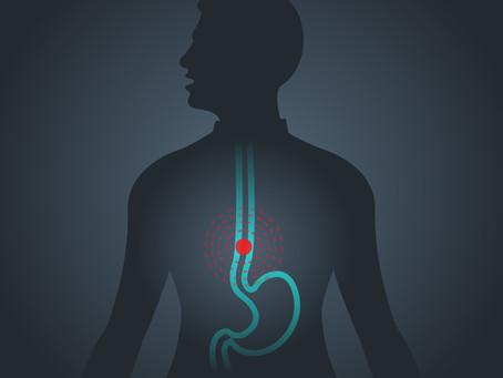 Diagnóstico tratamento do câncer de esôfago