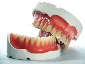 Terceira dentição: Seus dentes de volta.
