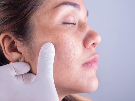 O médico dermatologista é capacitado para realizar cirurgias de pele e unhas