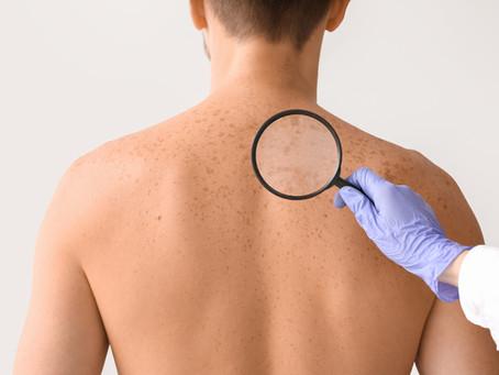 Câncer de pele: quais são os fatores de risco?