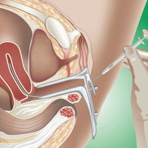 Quando devo pensar em inseminação artificial?