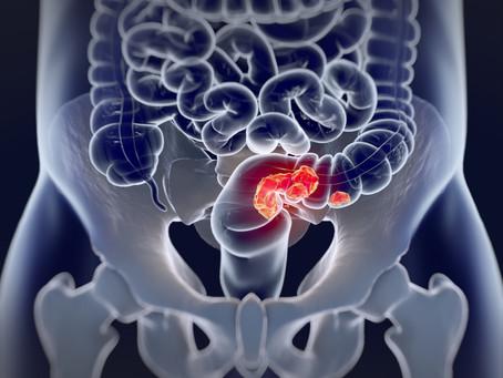 Câncer colorretal: como são as cirurgias ?