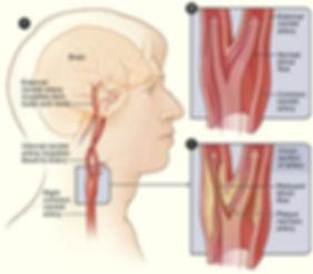 carotid-arteries-graphic.jpg