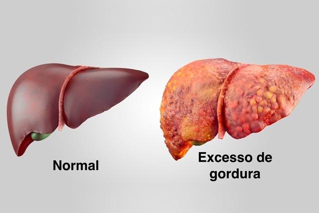 Como está a saúde integral do seu fígado?