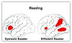 Dyslexia_Brain.jpg