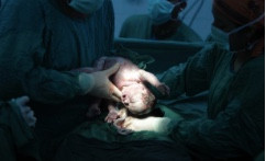 Learn Two Ways To Avoid Cesarean Section