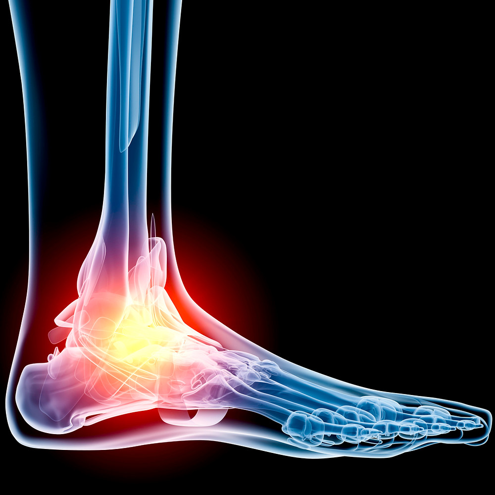 Ankle-Pain-Xray