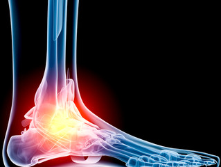 We've got the solution to your aching Ankle Pain! - Sports Related