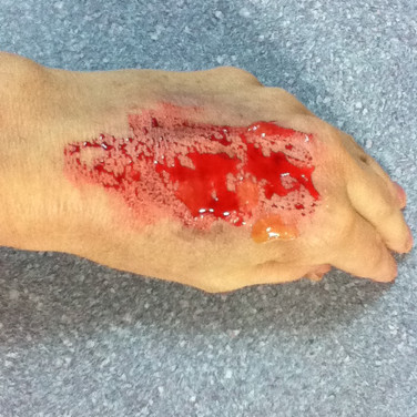 Moulage Photo#02