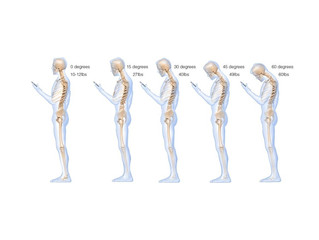 Texting Puts 50 Pounds Of Pressure On Your Spine