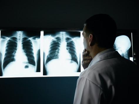 רשלנות רפואית בסרטן ריאות