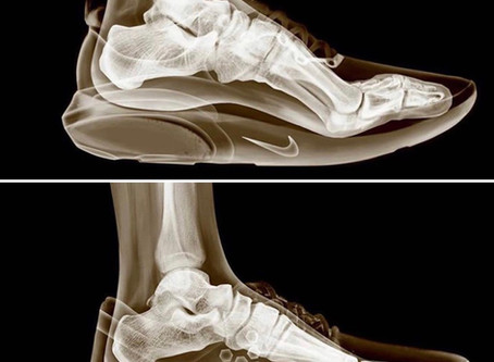 Your Shoes Are Inhibiting Your Fitness