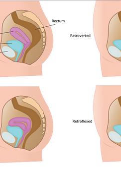 Prolapsed uterus therapy |Best Fertility Massage