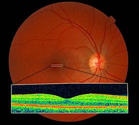 Opticians Burgess Hill