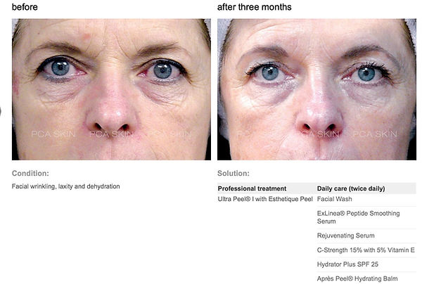 anti-aging-chemical-peel-before-after.jp