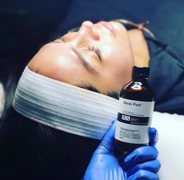 Spring special chemical peel