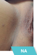 dermamelanintimate-na2-mesoestetic-aesth