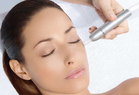 Rejuvenate Your Skin and Slow the Aging Process with Radiofrequency Microneedling