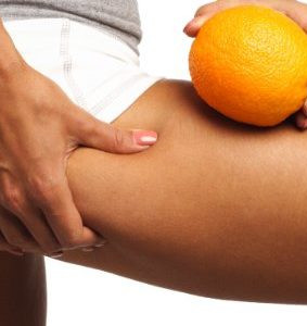 Cellulite: All You've ever wanted to know