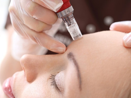 Is Microneedling right for me?